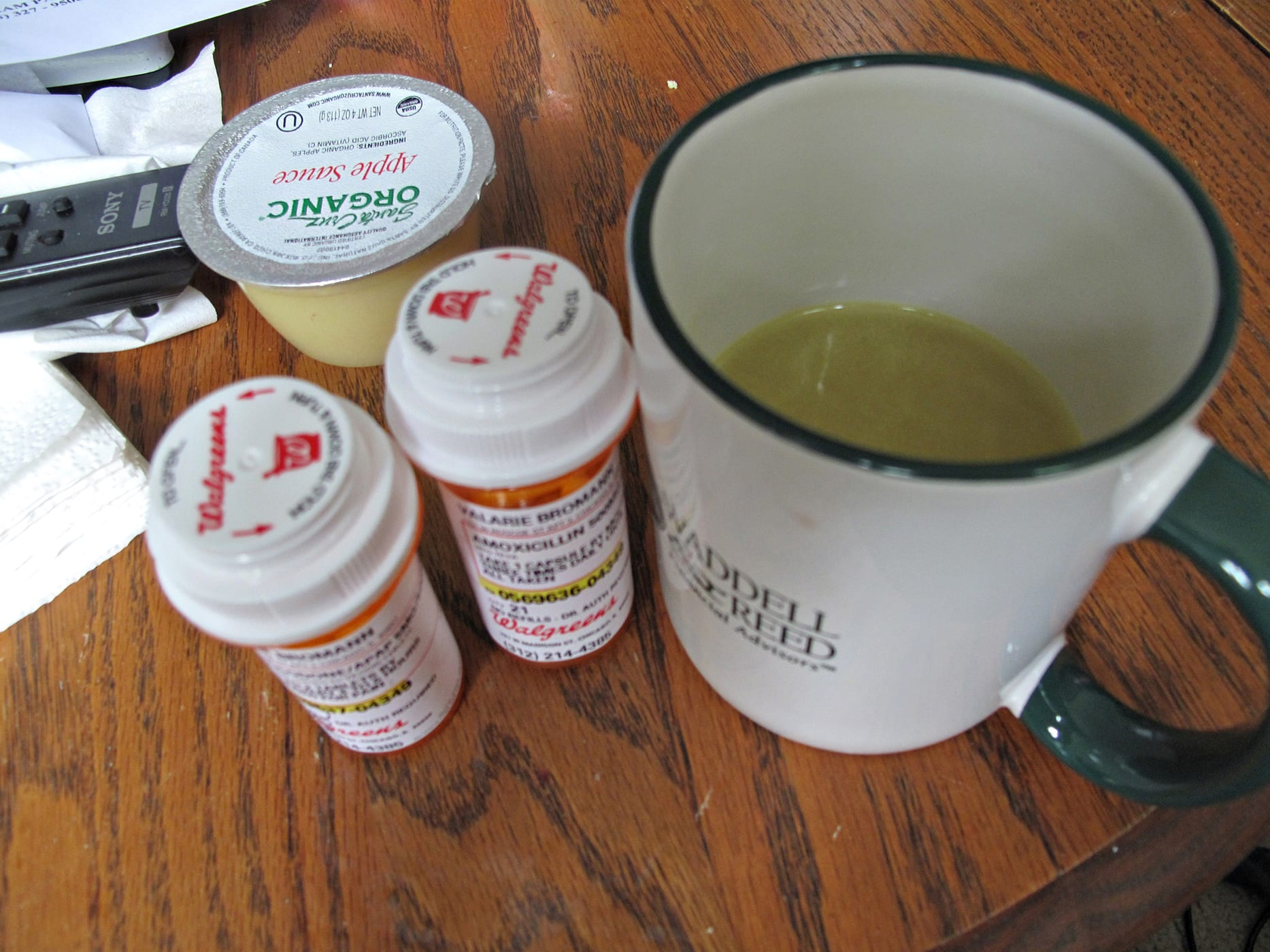 Wisdom tooth diet - chicken broth